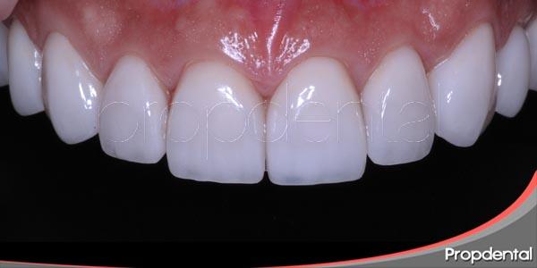 dientes sanos y bonitos