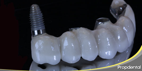 fracaso implantes dentales