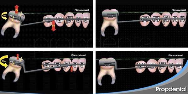 fuerza aplicada en ortodoncia