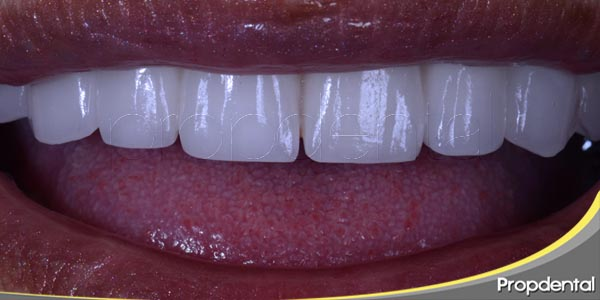 implantes dentales en un dia