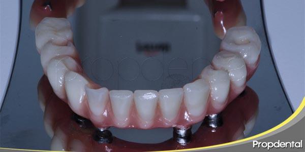 implantes en zona posterior