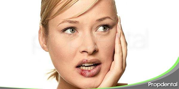 infecciones viricas de la cavidad oral