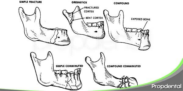 intervenciones para el tratamiento de fracturas