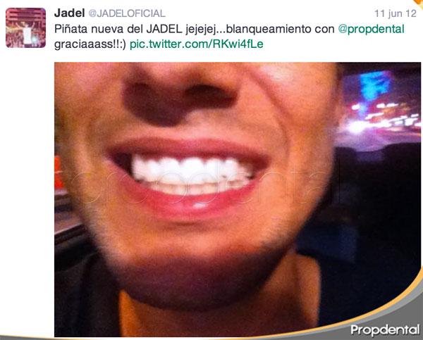 jadel blanqueamiento dental