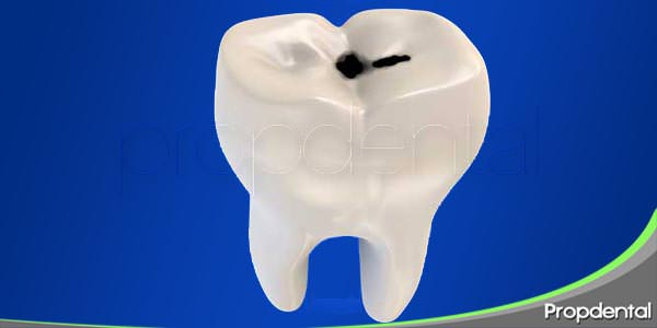 la placa dental y la caries