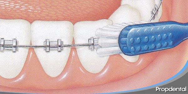 limpiar dientes con ortodoncia