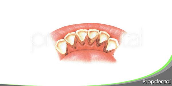 manchas negras entre los dientes