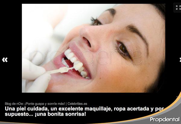 Noelia Lopez dientes blancos