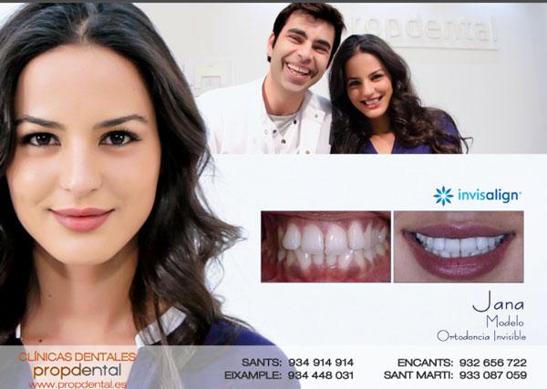 ortodoncia invisalign jana perez