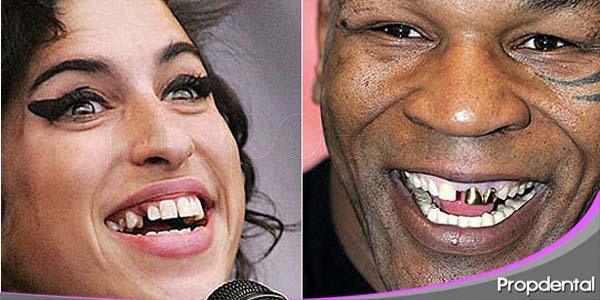peores sonrisas de las celebrities