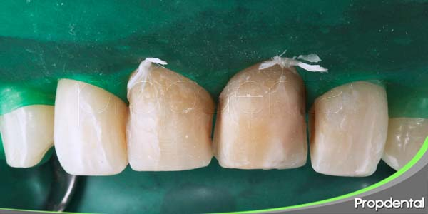 preparación dentaria