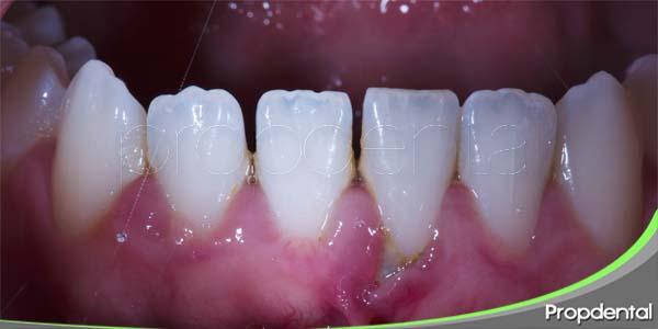 protocolo de periodoncia