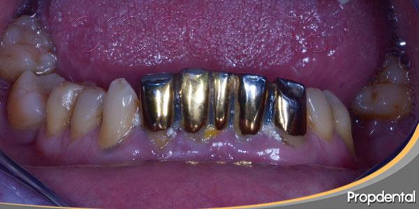 puentes dentales de oro
