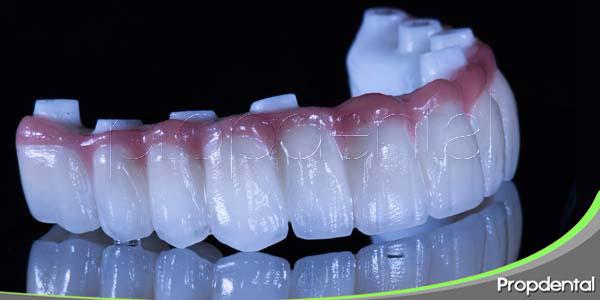 rechazo de los implantes dentales
