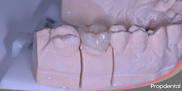 restauraciones de dientes posteriores