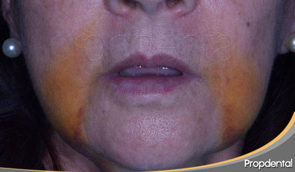 riesgos de los implantes dentales