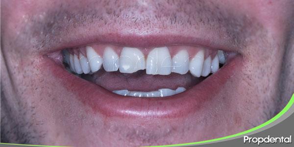 rotura pieza dental