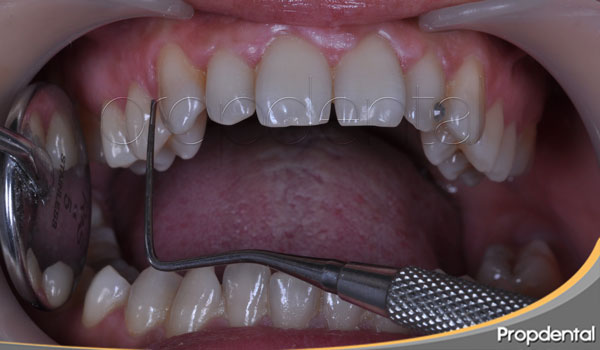 sondaje de diagnóstico periodontal