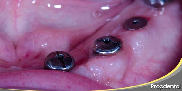 tejidos blandos periimplantarios