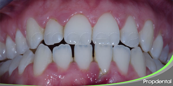 tratamiento periodontal de la movilidad