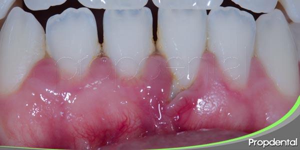 tratamientos periodontales