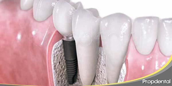 últimas novedades de los implantes dentales
