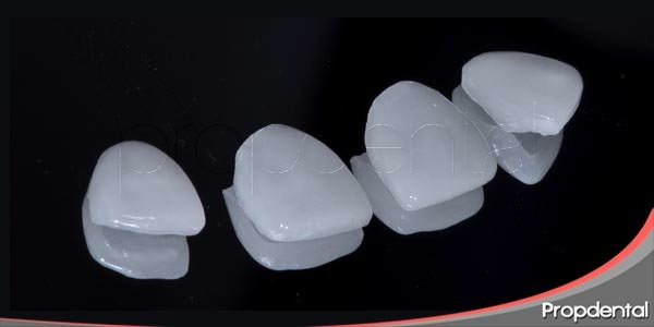 ventajas de las carillas dentales de porcelana