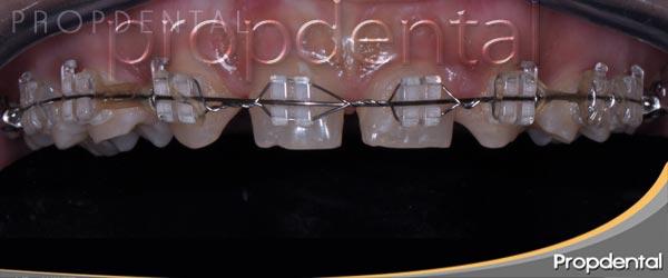 brackets-transparentes-de-zafiro
