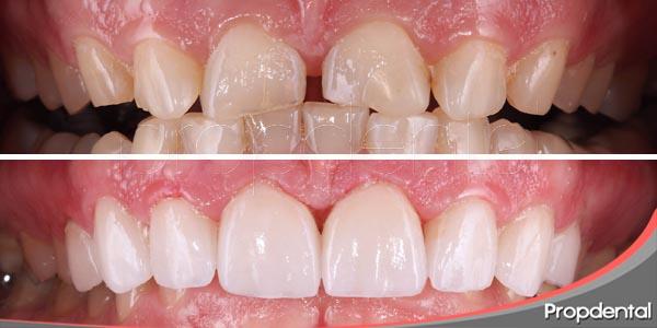cambiar la forma de los dientes