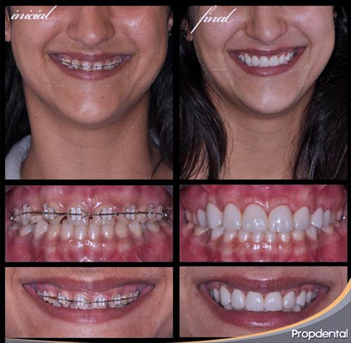 caso clínico de ortodoncia y prótesis dentales