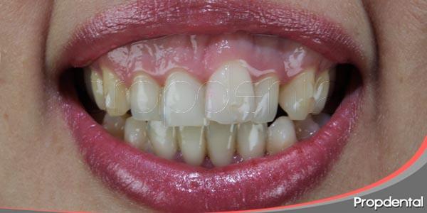 como nos puede afectar la sonrisa gingival