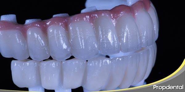 cuidados para la duración de los implantes dentales