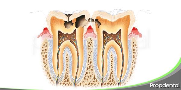 destrucción dental en drogodependientes