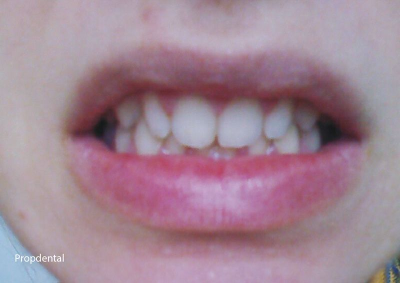 dientes pequeños