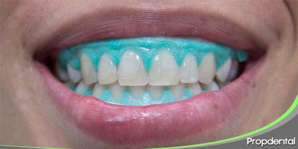 efectos secundarios del blanqueamiento dental