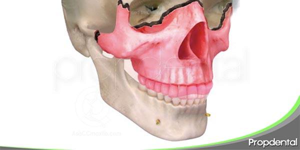 fractura maxilofacial