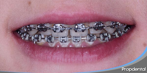 implantes en ortodoncia