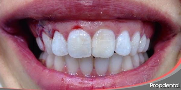 indicaciones de la gingivectomia