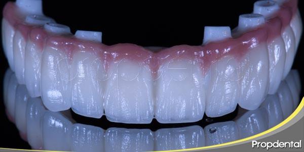 lo que hay que saber de los implantes dentales