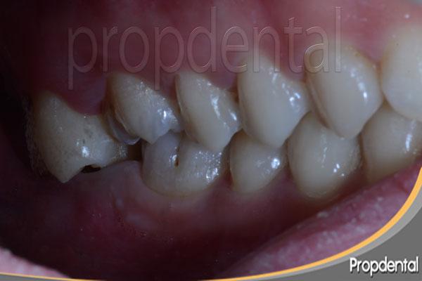 molar extruido