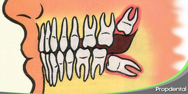 patología del tercer molar retenido