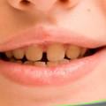 porqué los dientes permanentes salen amarillos