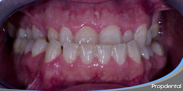 problemas de alineación o maloclusión de los dientes