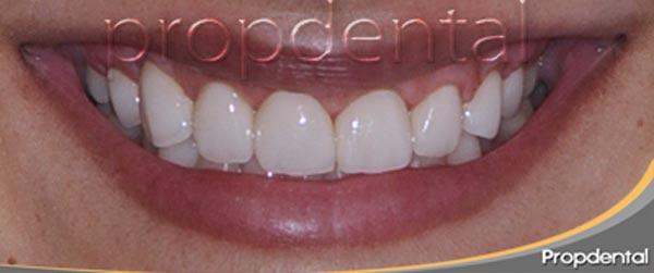 prótesis dentales de circonio