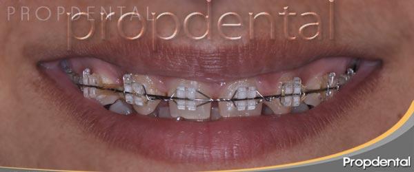 prótesis dentales y ortodoncia