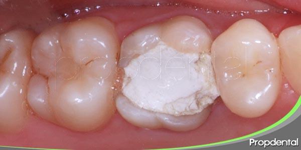 razones de la sensibilidad despues de un empaste dental