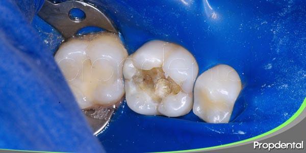 relación entre la caries en dientes temporales y permanentes