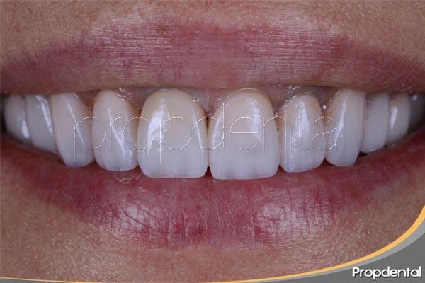 sonrisa con prótesis dentales