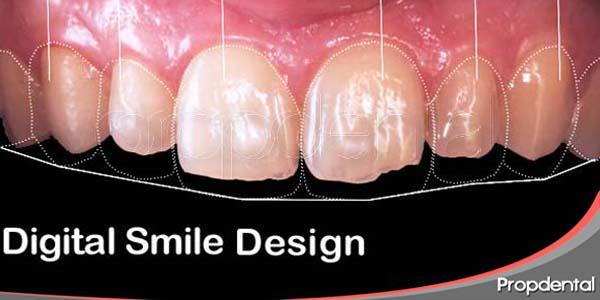 tratamiento para un diente astillado