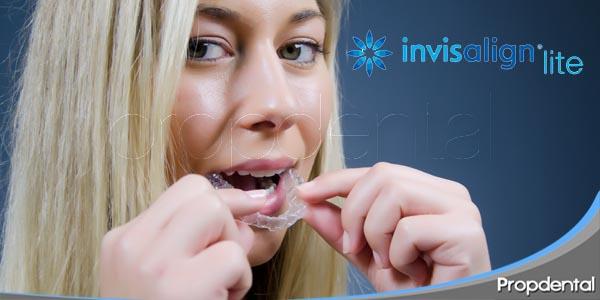tratamientos cortos de invisalign